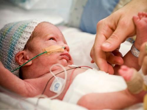 Neonatal CPAP